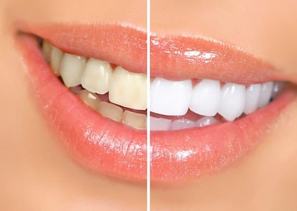 alimentos a evitar si quieres unos dientes blancos