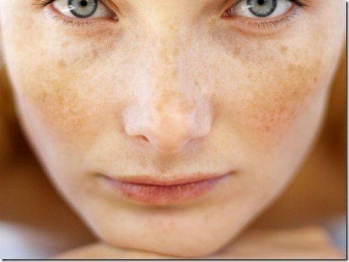 remedios naturales para limpiar la piel